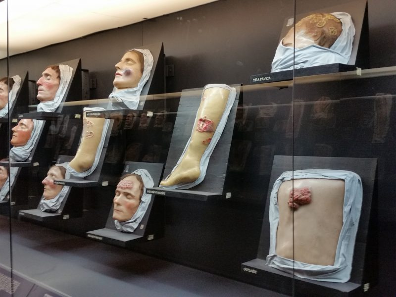 Display of diseased human limbs and faces at a medical museum in Mexico City.