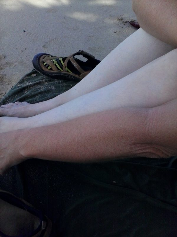 A woman with her tan arm being held in comparison to her pale legs on a beach.